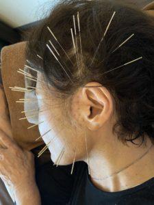 耳鳴りの鍼治療風景