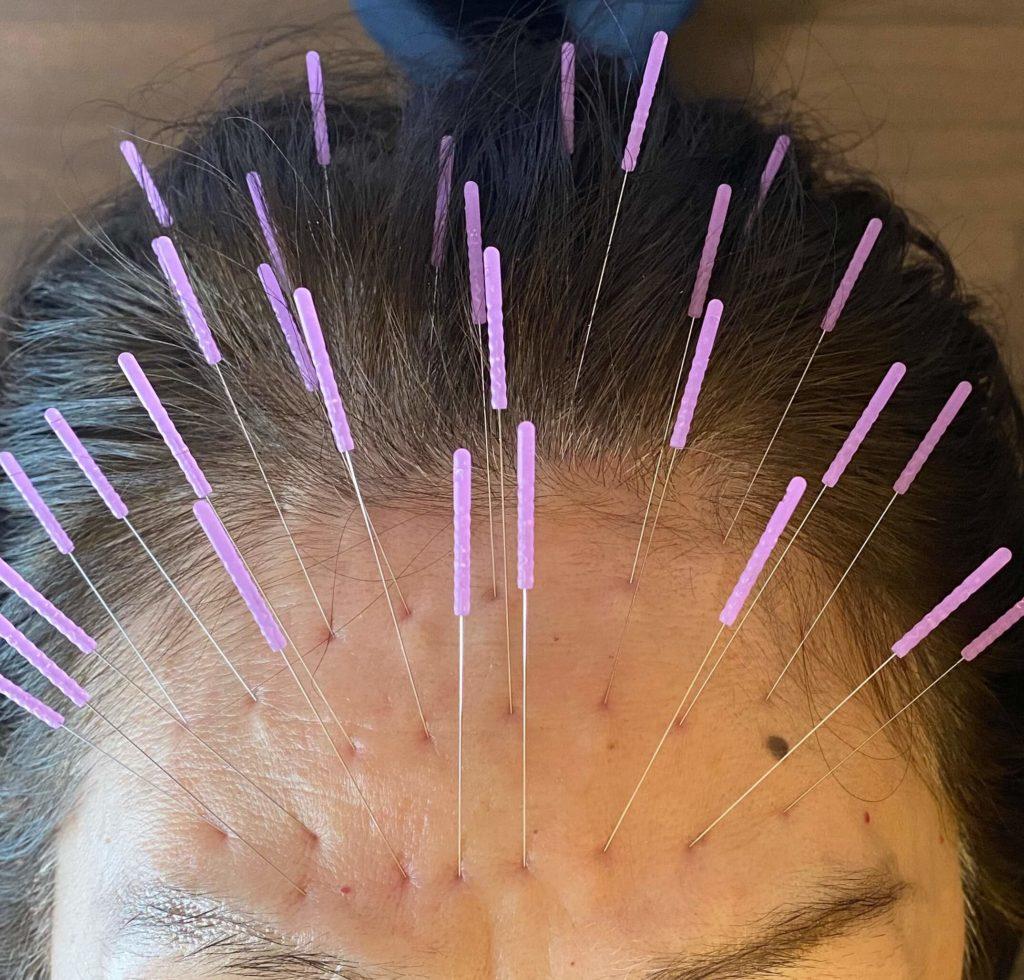 前額部の頭痛鍼治療