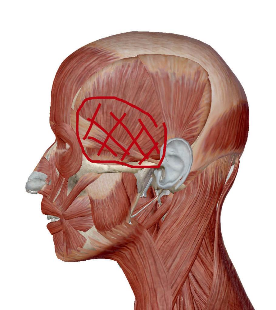 コメカミの頭痛