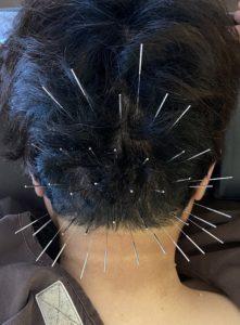 後頭部頭痛