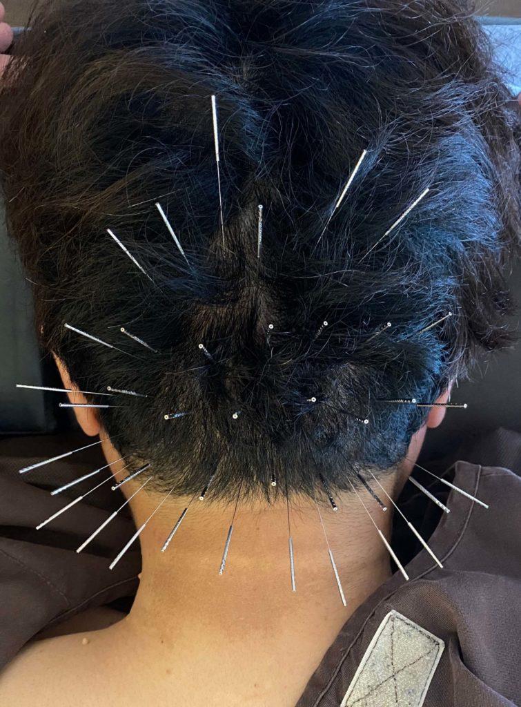 後頭部頭痛の鍼治療