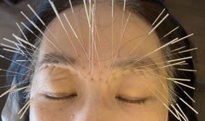 眼精疲労の鍼治療