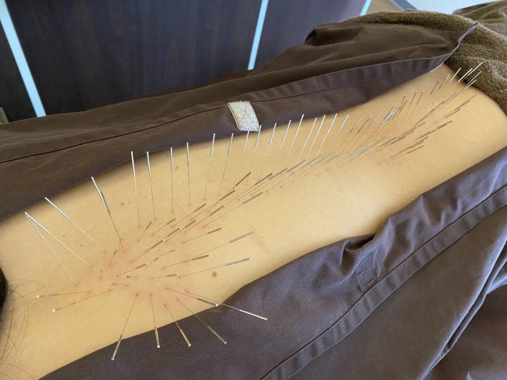 背中腰の鍼治療